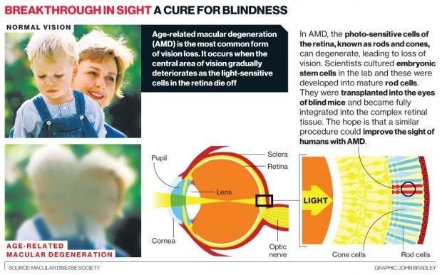 BlindnessCure.jpg