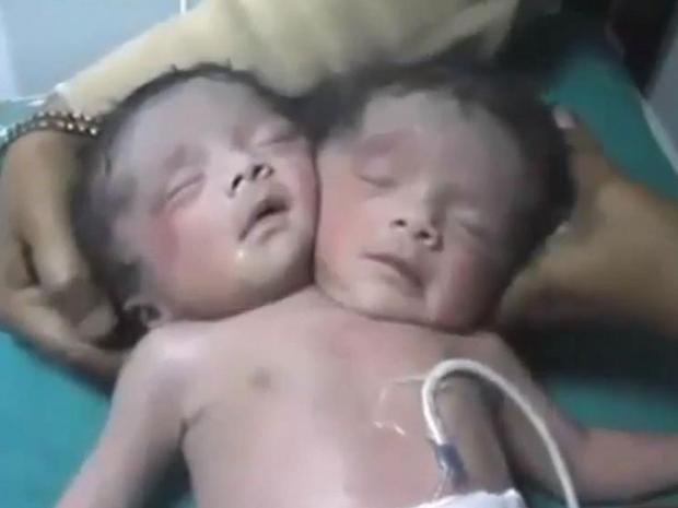 two-headed-baby.jpg