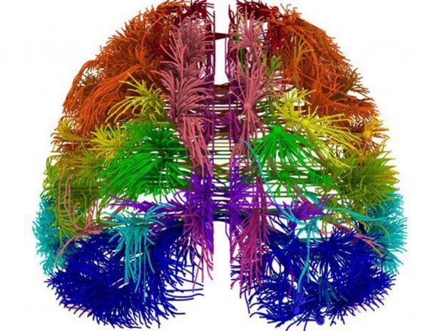 26-Brain-PA.jpg