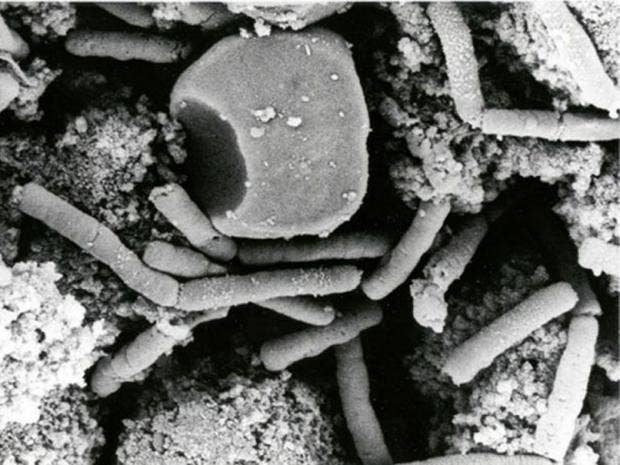 Anthrax-cells.jpg