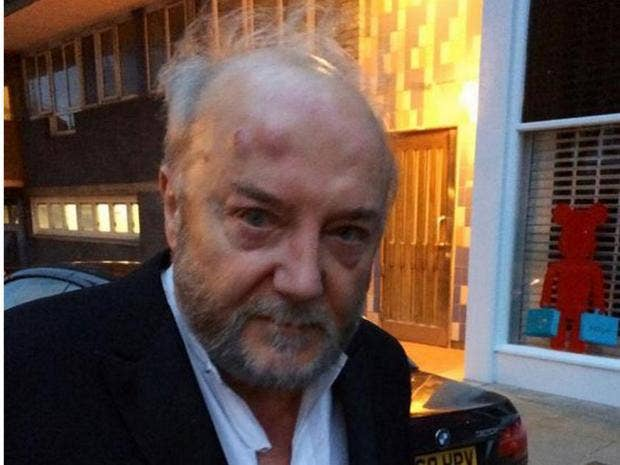 George-Galloway-attack.jpg