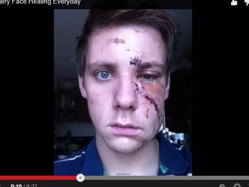 metro-scar.jpg