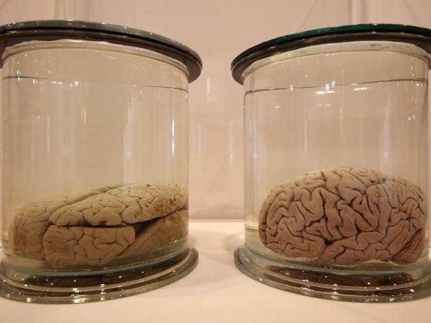 Brains-in-jars.jpg