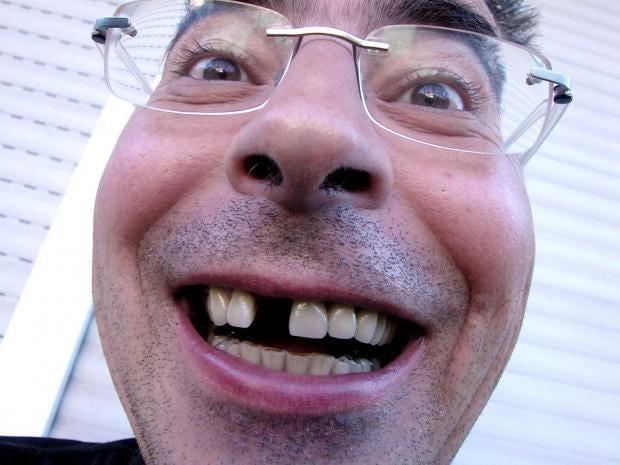 teeth-rex.jpg