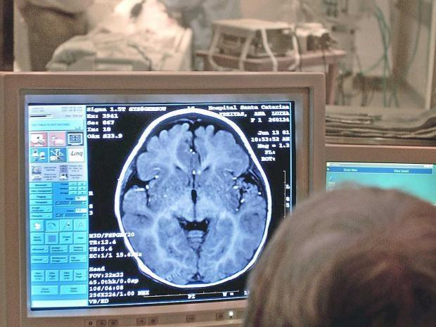 MRI-getty.jpg
