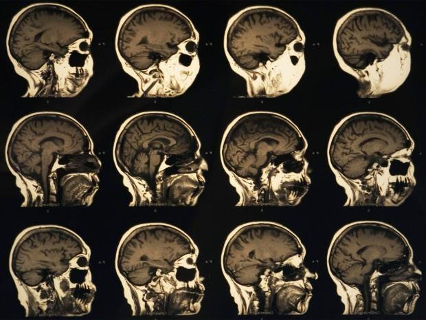 pg-33-brain-1-alamy.jpg