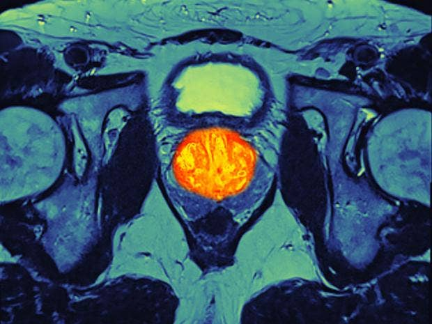 3-prostate-cancer-Rex.jpg