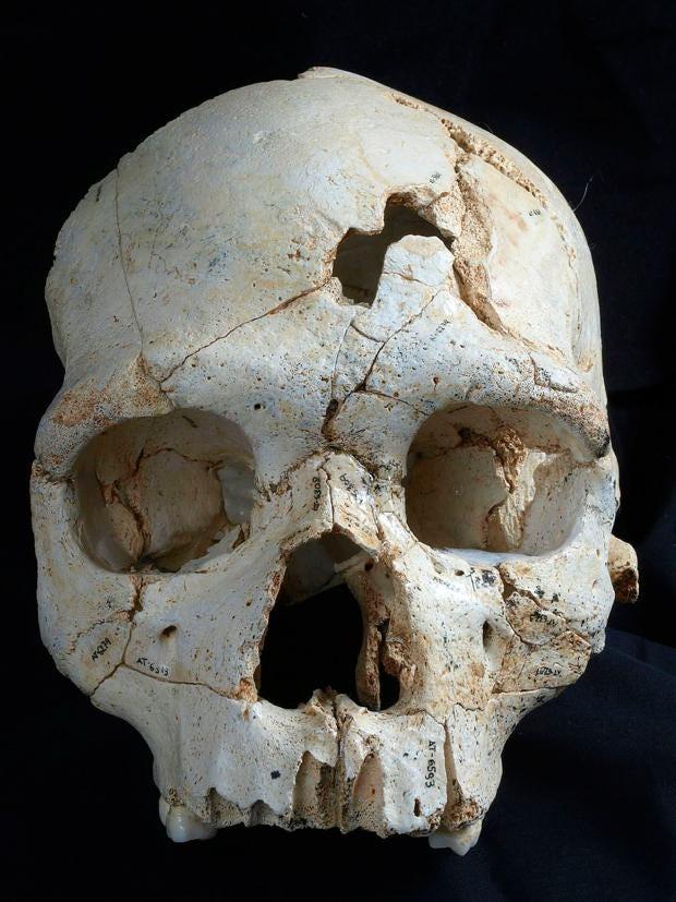 20-skull-PA.jpg