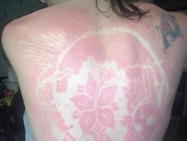 sunburn-art.jpg