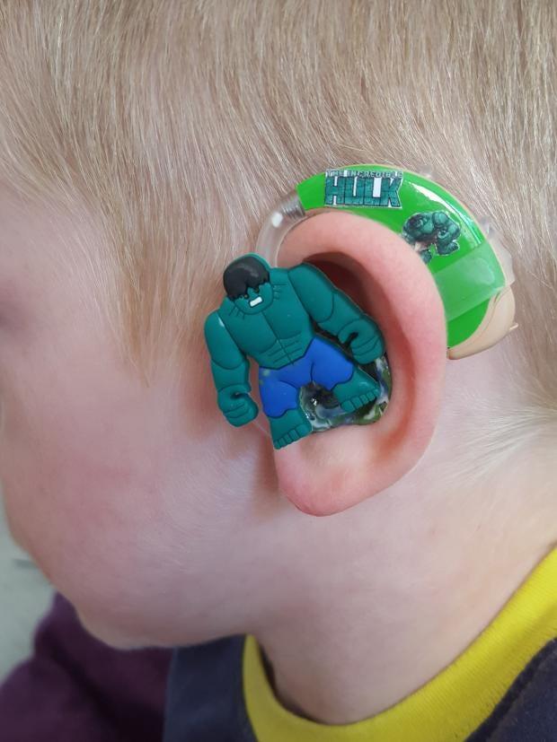 hearing-aid-7.jpg