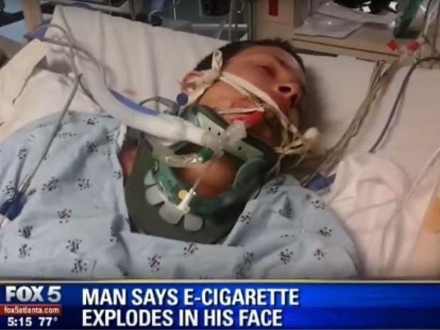 james-lauria-e-cigarette.jpg