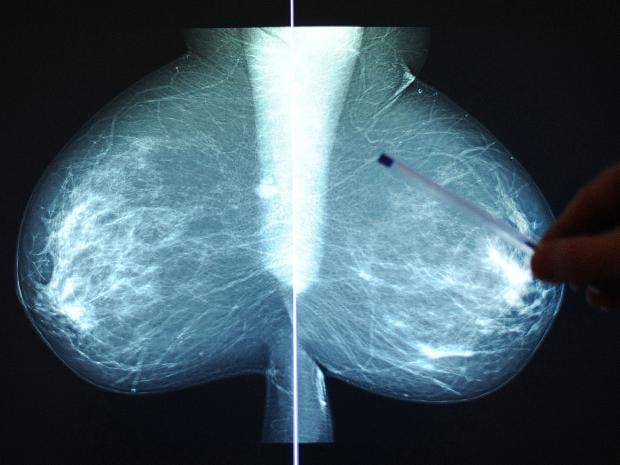 Breast-Cancer-Rex.jpg
