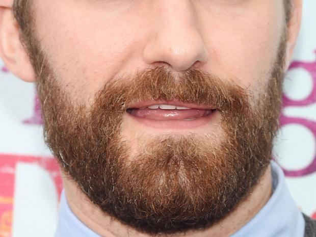 beard-transplants.jpg
