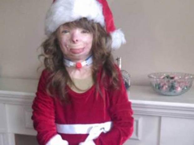 Safyre-Terry-christmas-arson-survivor.jpg