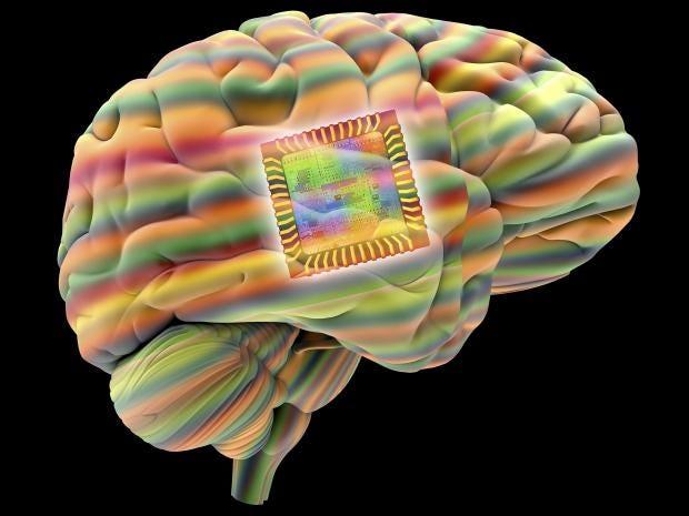 11-brain-implant-corbis.jpg