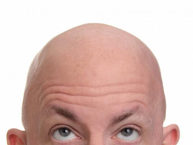 web-baldness-bald-RF-istock.jpg