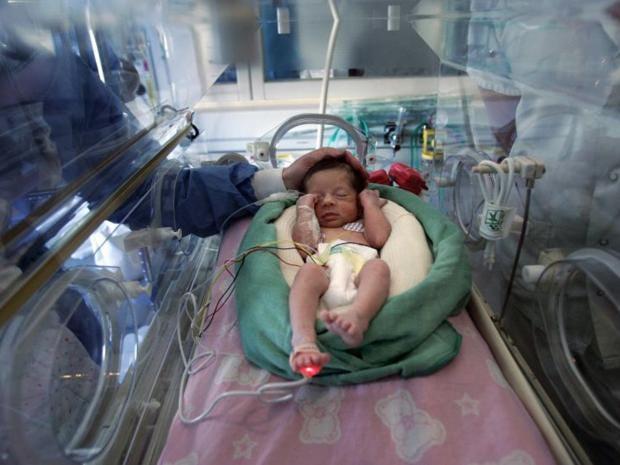 20-premature-baby-afpget.jpg