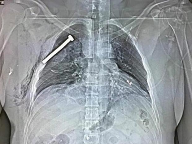 x-ray-brussels.jpg