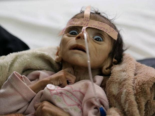 Image result for starving yemeni children