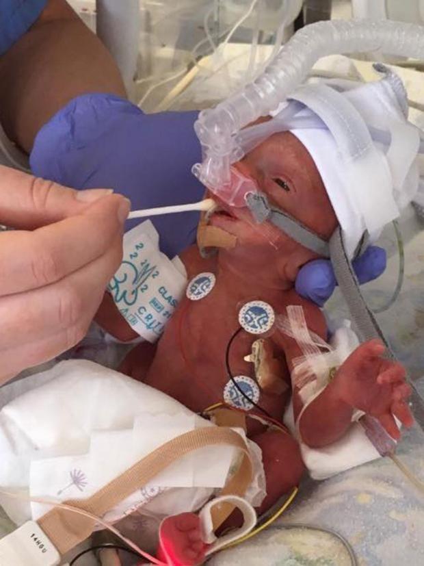 Eu Referendum Premature Baby Born At 28 Weeks Might Not