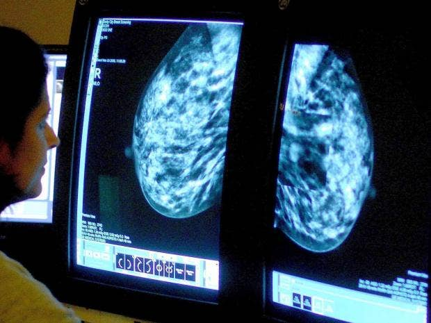 Wrong eating habbits increase the risk of breast cancer