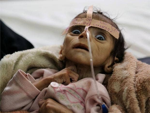 Image result for More than seven million people in Yemen do not know where their next meal will come from