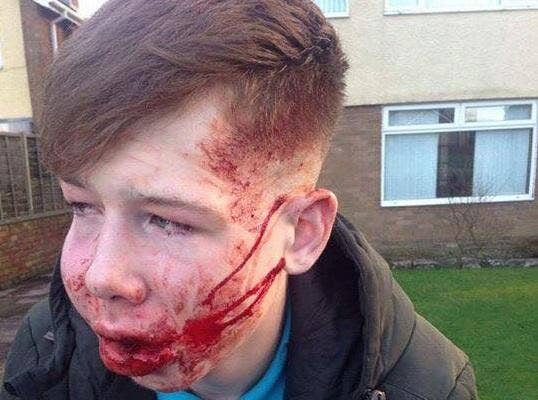Shocking Pictures Of 15 Year Old Bullying Victim S Face