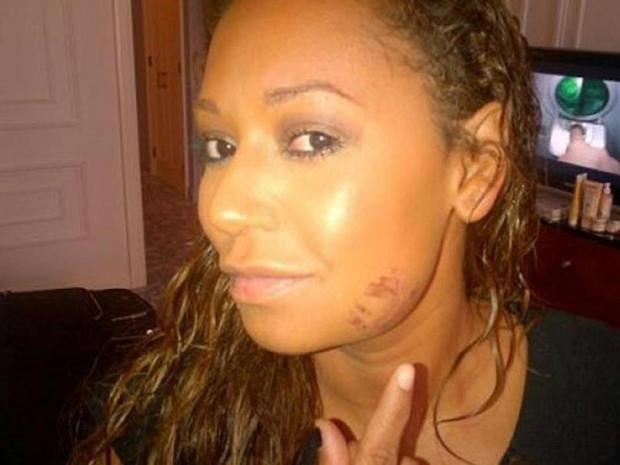 melanie-brown-bruise.jpg