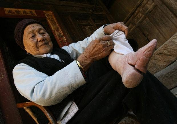Young girls in 1930s China having their feet bound to modify ...