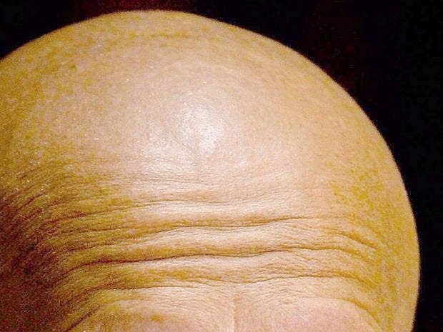 bald-head.jpg