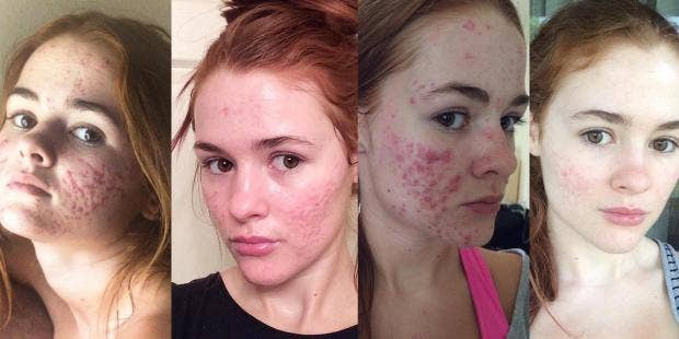 This Woman S Before And After Acne Pictures Are Going