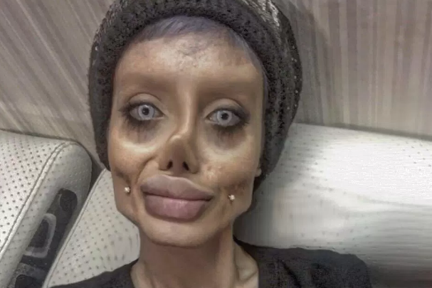 Sahar Tabar Iran >> Teen behind viral 'Angelina Jolie' plastic surgery photos reveals she lied | The Independent