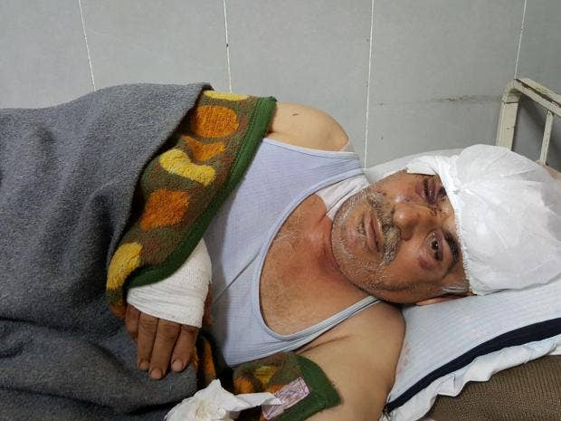 Mohamed Hussein, a 58-year-old Kurdish farmer, lies in the Afrin hospital,  wounded in the head and eye after his home was bombed by a Turkish aircraft  on ...