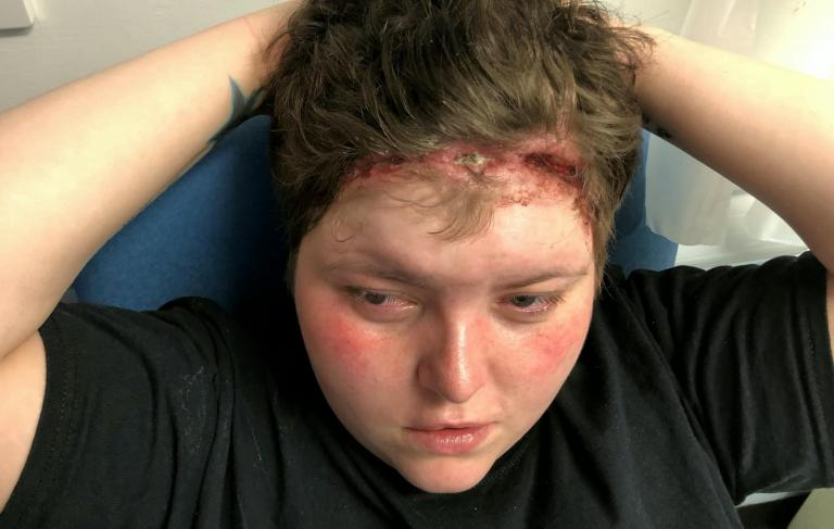 Woman with wound from weave sewn too tightly fears she will be scarred for life