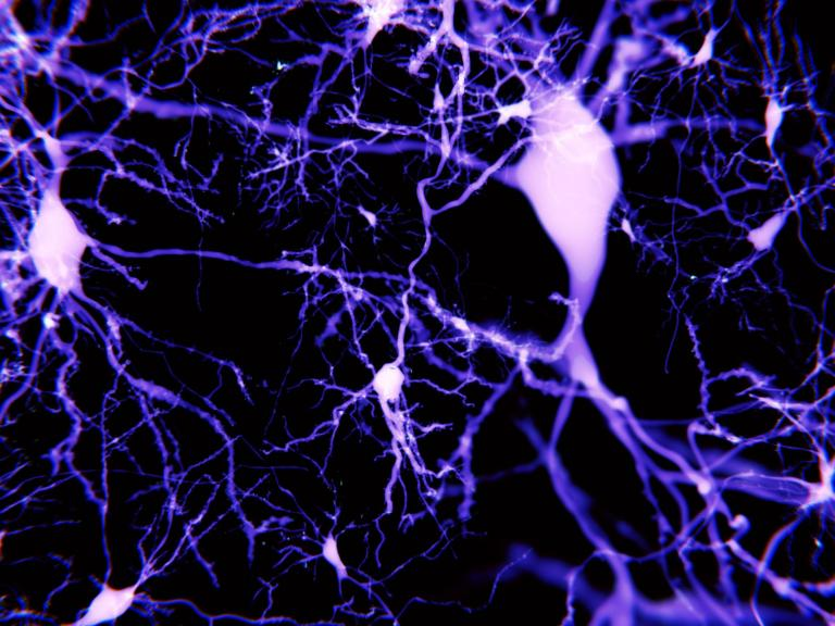 synapse-brain.jpg