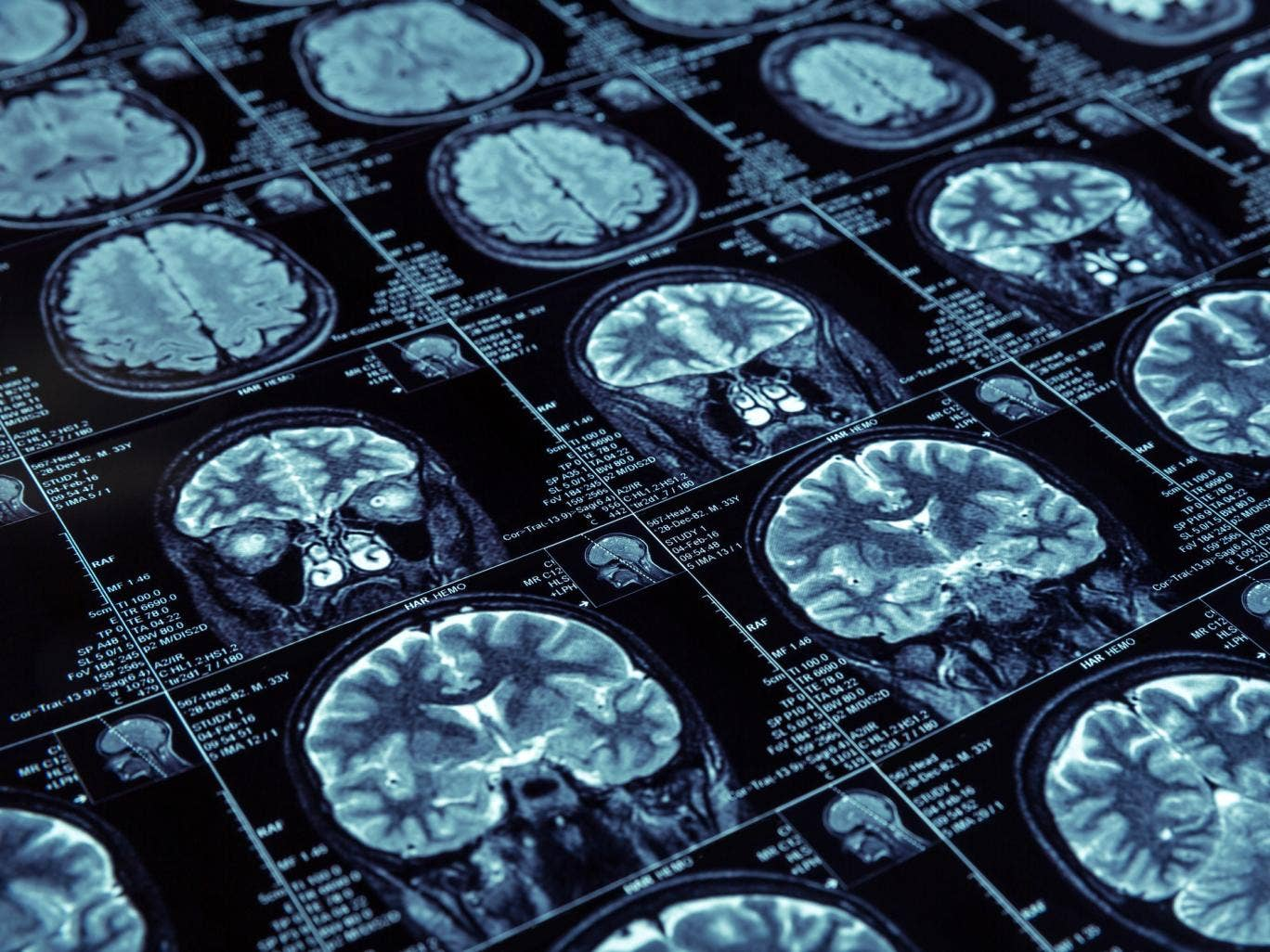 dementia-lewy-bodies.jpg