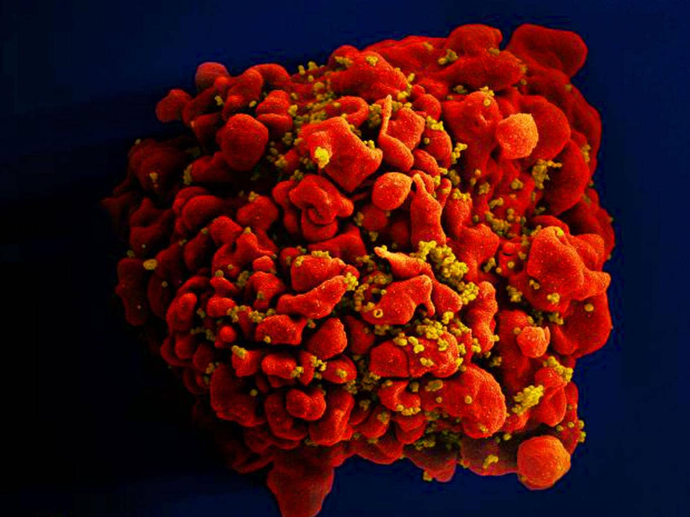 hiv-virus.jpg