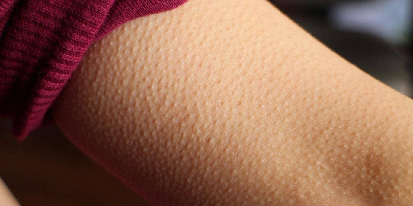 picture Goose Bumps: What Causes Them