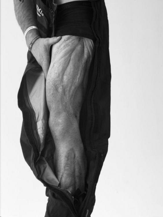 These Moving Photos Of Wounded Soldiers Were All Taken By Bryan - Powerful photographs injured british soldiers bryan adams