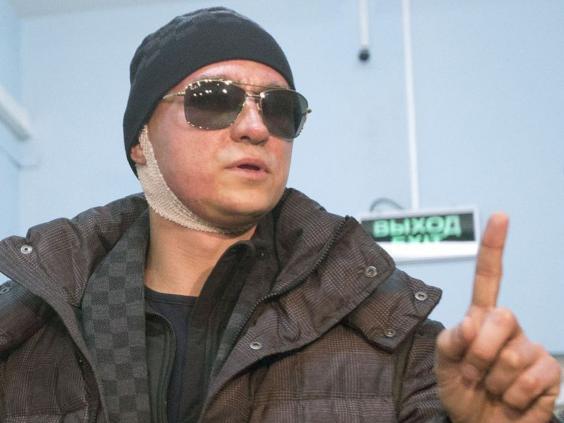 Sergei-Filin-Bolshoi-acid-attack-AFP.jpg