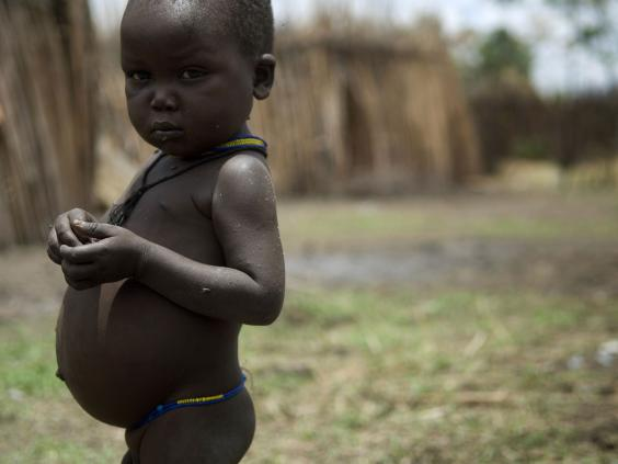 Malnutrition-Getty.jpg