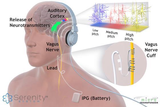 Serenity-Tinnitus-Therapy-Diagram.jpg