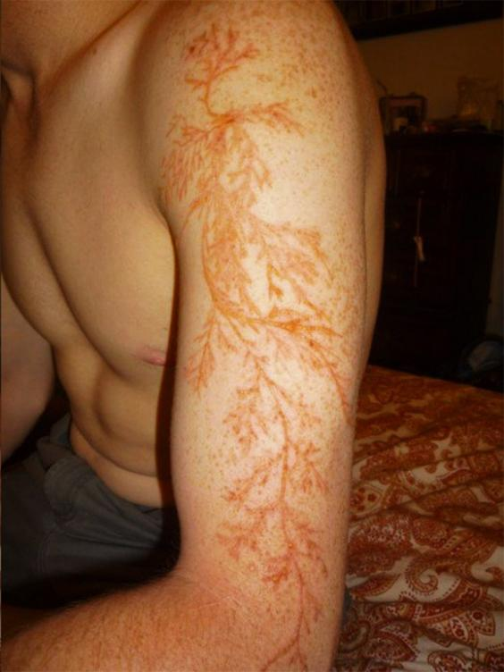 Lichtenberg Figure - Lightning Scars on Arm