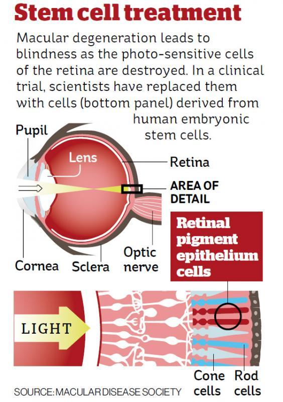 web-stem-cell-graphic.jpg