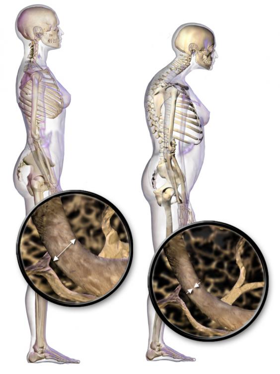Blausen_0686_Osteoporosis_01.png