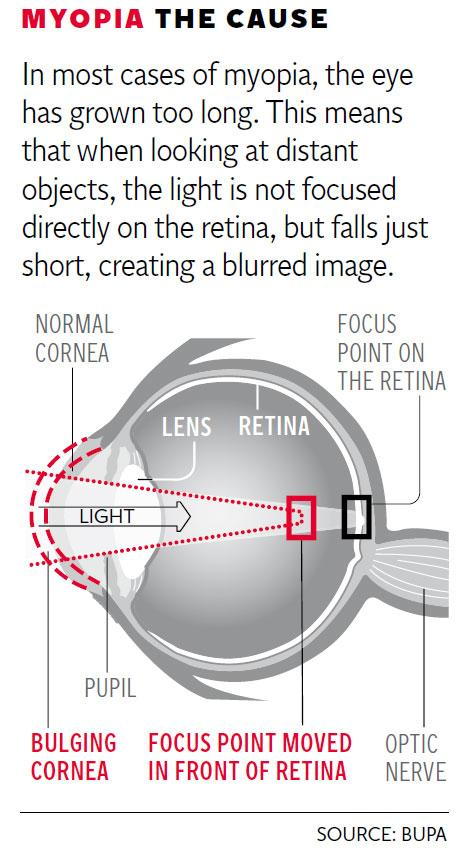 Myopia-Graphic.jpg