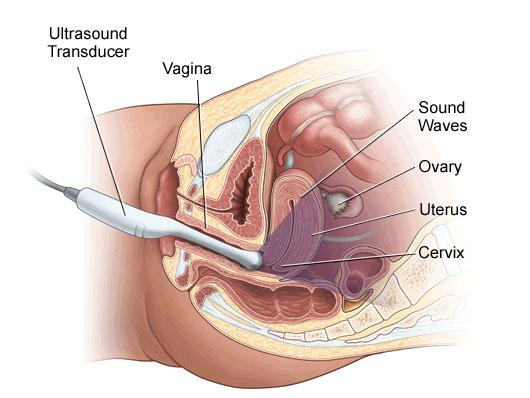 transvaginal-medical-probe.jpg