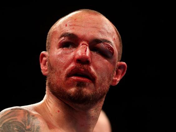 boxing-eye.jpg