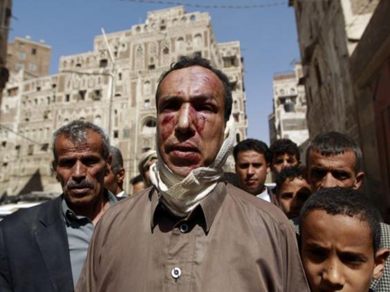 31-yemeni-man-afpget.jpg