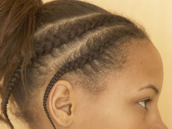 Traction alopecia the hairstyles which can cause hair loss the rexfeatures3123394ag pmusecretfo Image collections